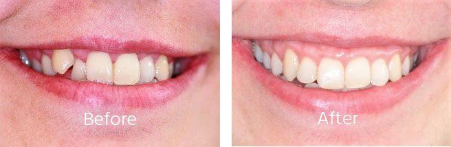 Dental Aligners Andover