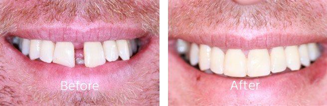 Gap Teeth Braces Andover