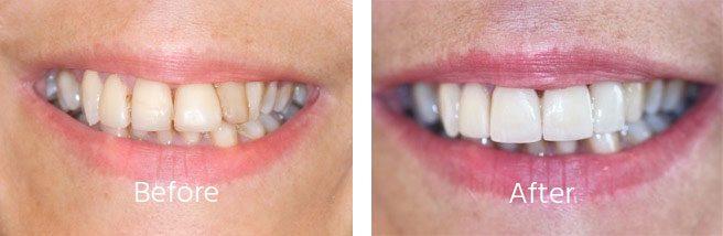 Dental Aligners Andover Hampshire